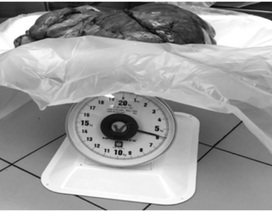 Đau tức bụng vào viện, người đàn ông phát hiện khối u nặng 6kg