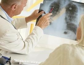Tìm ra phương pháp cứu chữa phổi của bệnh nhân Covid-19