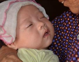 Tiếng khóc xé lòng của bé 3 tháng tuổi bị bệnh tật giày vò