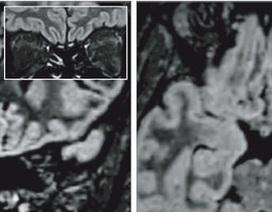 Virus corona thay đổi não của bệnh nhân như thế nào?