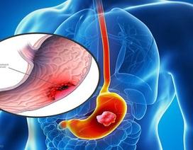 Ung thư dạ dày - Bệnh có thể phòng ngừa