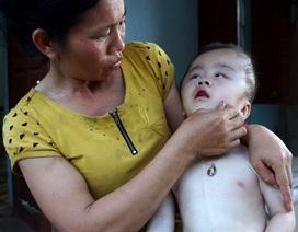 Thương cảnh mẹ nghèo ôm con bị bệnh não úng thuỷ xin ăn từng bữa