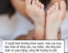 Bàn chân có 4 dấu hiệu này cho biết sức khỏe lá gan của bạn đang suy giảm