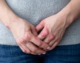 Tìm ra giải pháp giúp hỗ trợ cho người bị vảy nến, viêm da cơ địa