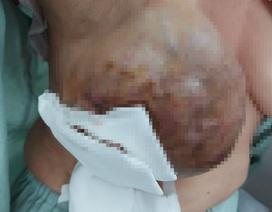 Hoảng hồn vú sùi loét, phun máu thành tia sau 20 năm tự điều trị ung thư