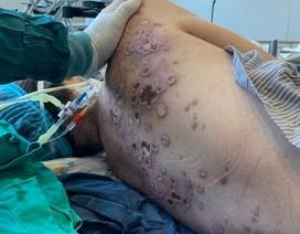 Sởn da gà tình cảnh người phụ nữ bị vi khuẩn ăn mòn cơ thể đến nguy kịch