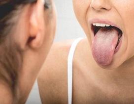 Thói quen xấu gây ung thư lưỡi nhiều người Việt đang mắc phải