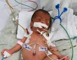 Bà ngoại cắt rốn, bé sơ sinh nhiễm uốn ván nguy kịch