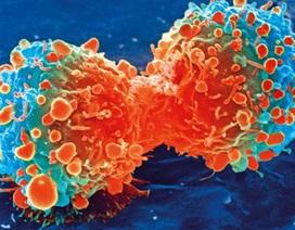 """Phát hiện thứ ngay trong cơ thể """"khóa"""" được ung thư gan"""