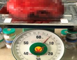 Người phụ nữ tập thể dục mãi không giảm béo bụng, hoá khối u to đến 6kg