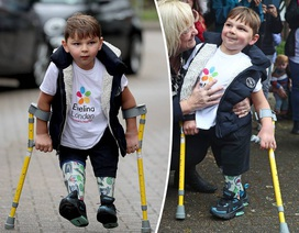 Cảm phục nghị lực của cậu bé từng bị bạo hành đến mức phải cưa chân