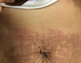 """Thẩm mỹ viện """"ma"""" dùng tế bào gốc dỏm làm """"cháy"""" bụng bệnh nhân"""