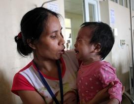 Xót xa tiếng khóc của bé 13 tháng tuổi bị hẹp phế quản bẩm sinh