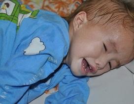Bị suy tim nặng, sự sống bé gái 2 tuổi người dân tộc Mông trở nên mong manh