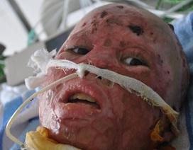 Ứa nước mắt khi thăm lại bé trai 10 tuổi bị hun rơm