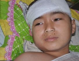 Bé 11 tuổi bị mất hai cánh tay vì điện cao thế