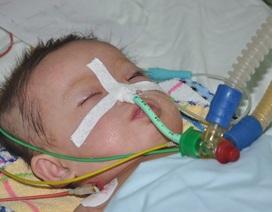 Mong manh sự sống bé 8 tháng tuổi vì bệnh tim bẩm sinh