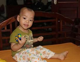 Hà Nội: Kỳ lạ bé 17 tháng tuổi cử động hai tay như một