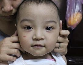 Bé trai 31 tháng tuổi chênh vênh sự sống vì bệnh tim bẩm sinh phức tạp