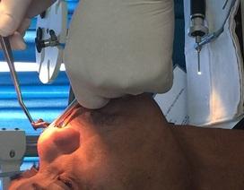 """Điều trị viêm xoang, hoá ra đỉa 6cm """"chui"""" vào mũi"""