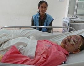 Thai nhi nguy kịch trong bụng người mẹ bị bỏng nặng