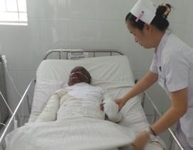 Nạn nhân đã tử vong vì bỏng điện quá nặng