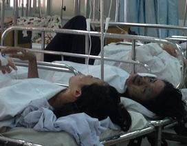 2 nạn nhân trong nghi án phóng hỏa bị bỏng rất nặng