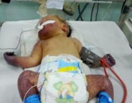 Cứu sống trẻ sơ sinh nhiễm trùng huyết, hoại tử tứ chi