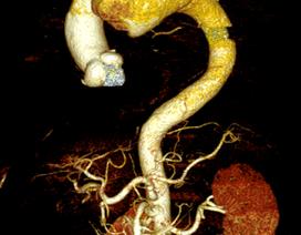 Cứu sống bệnh nhân vỡ phình quai động mạch chủ trên bàn mổ