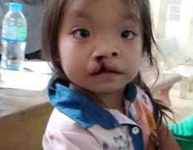 Phẫu thuật miễn phí 80 trường hợp dị tật khe môi, hở hàm ếch
