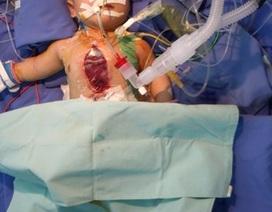 Thiếu trang thiết bị, bệnh nhân tim mạch xếp hàng dài chờ mổ