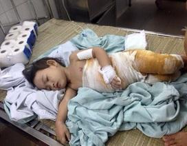 Bé 2 tuổi bị nồi canh đang sôi tưới lên người tạm thời qua cơn nguy kịch
