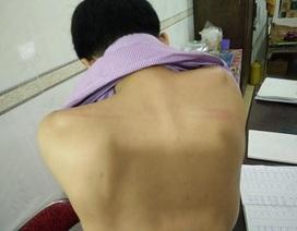 Triệu tập nhóm đối tượng đánh nhân viên đài huyện Hương Khê