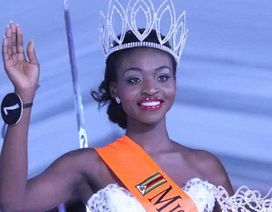 Hoa hậu Zimbabwe bị truất ngôi vì lộ ảnh khỏa thân