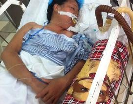 Bệnh nhân suýt liệt cơ hô hấp do bị rắn cắn lúc ngủ trưa