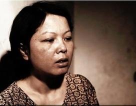 Cuộc sống tính từng ngày của cô giáo bị ung thư phổi do khói thuốc