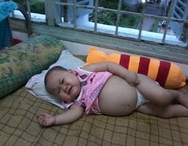Sự sống mong manh của bé gái 2 tuổi bị ung thư mô tế bào