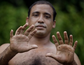 Người đàn ông sở hữu 24 ngón chân tay hoàn hảo
