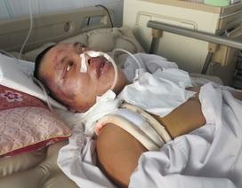 Bố bị tai nạn giao thông, cả gia đình rơi vào bĩ cực