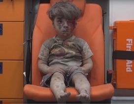 Nhói lòng hình ảnh cậu bé bị thương sau cuộc không kích ở Syria