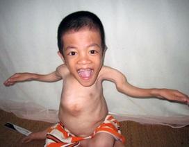 Nghị lực phi thường của cậu học trò xương thủy tinh cao 80cm