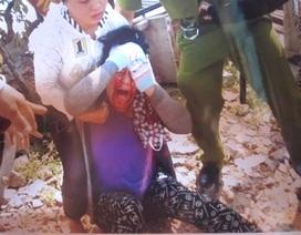 Giao công an làm rõ vụ Chánh Thanh tra bổ cuốc vào đầu phụ nữ
