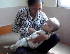 Nhói lòng nhìn bé 15 tháng tuổi bị não ủng thủy đang trong cơn nguy kịch