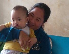 Phẫu thuật miễn phí hở hàm ếch cho trẻ em nghèo tại Tây Nguyên