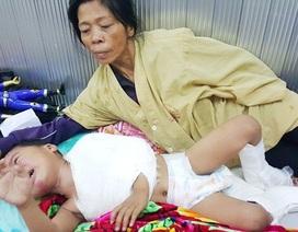 Thương bé 3 tuổi gãy hai chân, mất cả bố lẫn mẹ sau khi bị ô tô khách đâm
