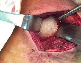Cứu sống 1 bệnh nhân bị áp xe trung thất do thủng thực quản