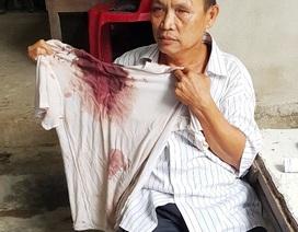 Thừa Thiên Huế: Trưởng hội người mù và con trai bị vào tận nhà đánh trọng thương