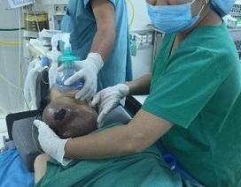Phẫu thuật thành công cho cụ bà có khối u ở cổ nặng hơn 2kg