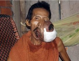 Người đàn ông bị khối u chiếm hết khuôn mặt không tiền điều trị
