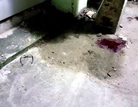 """Hà Nội: Dấu hiệu bất thường trong vụ """"tai nạn lúc nửa đêm"""""""